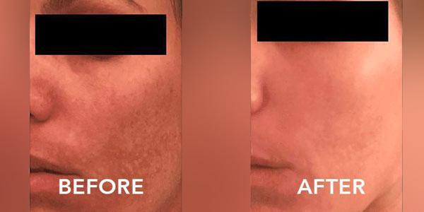 3-hyperpigmentation-treatment-1