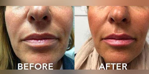 4-Lip-filler-enhancement-before-adn-after